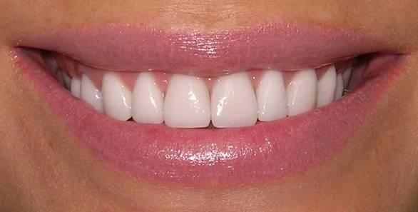 красивые зубы гомель гагарина 20